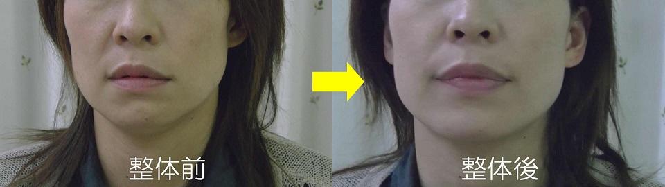 カラダの捻じれからの顔のブレの変化 B様