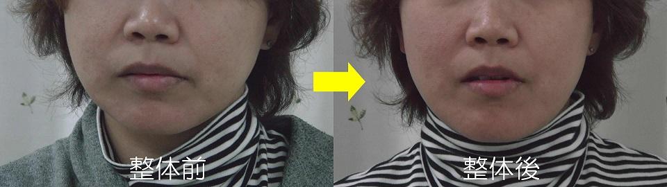 カラダの捻じれからの顔のブレの変化 A様